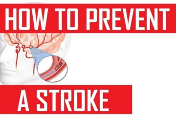 how to prevent stroke naturally