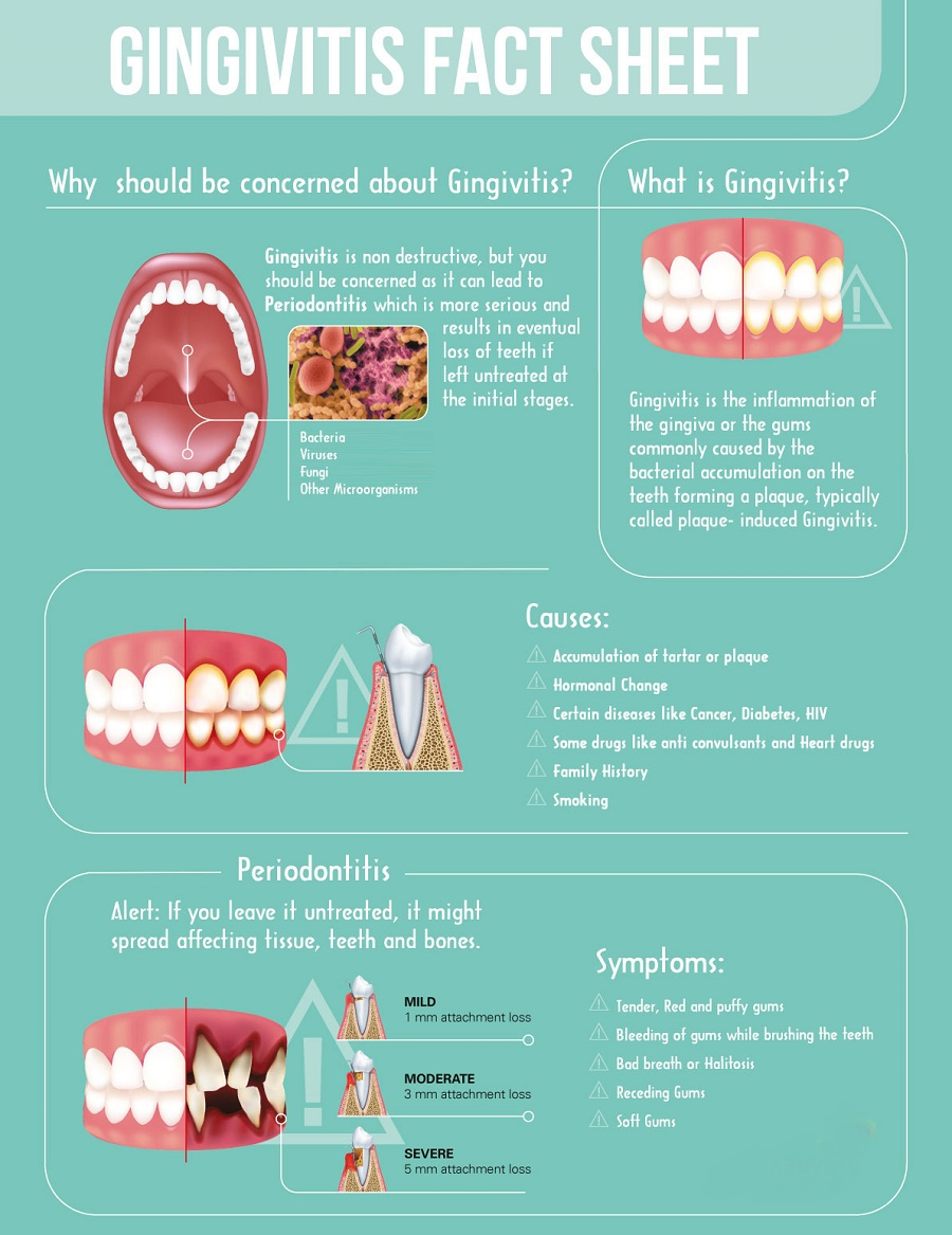 How to prevent gingivitis