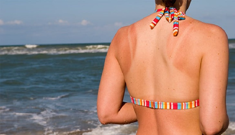 how to get rid of a tan line?