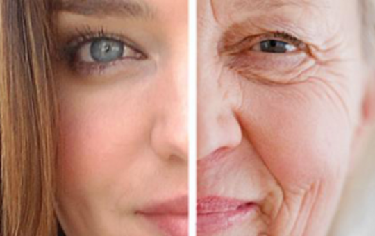 effects of stress on aging