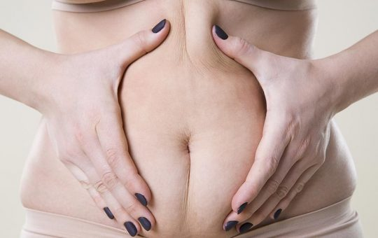 how to get rid of cellulite on stomach at home